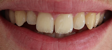 Before Invisalign Treatment at Smile rooms In Milton Keynes