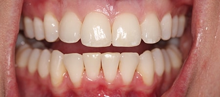 crowded teeth after Invisalign